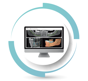 protesi per chirurgia guidata